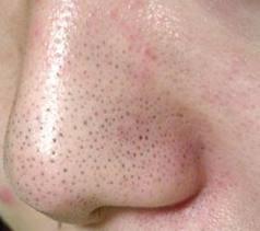 nose1.jpg